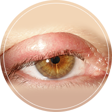The Radiant Eye Centre Pte Ltd.